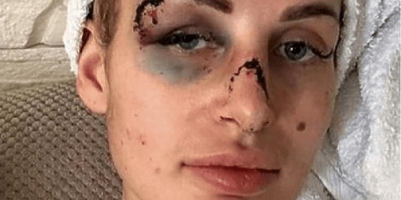 Jak się czuje Katarzyna Dziedzic 3 tygodnie po pobiciu