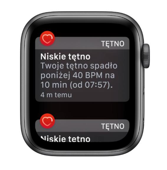 Po co mi smartwatch, czyli o tym jak Apple Watch zmienił moje życie